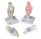 Sectional knee joint model, 3-part