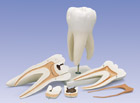Giant Molar with Dental Caries, 15 times life-size, 6-part
